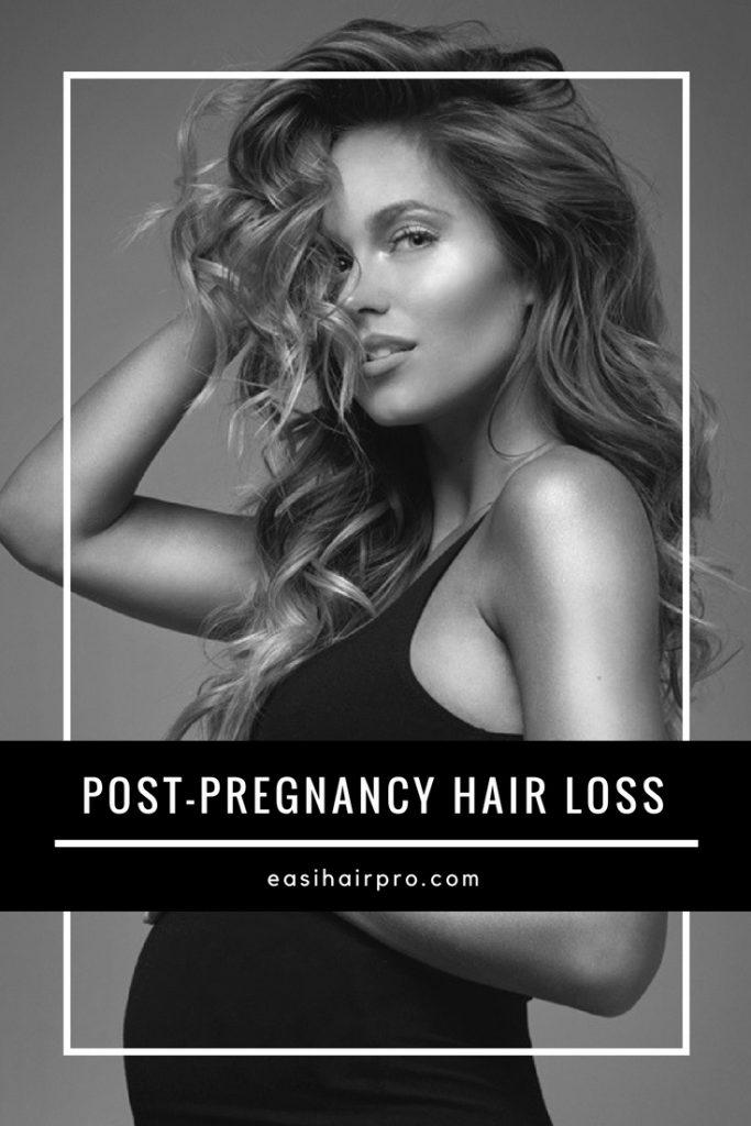 Pin it Ivy Post-Pregnancy Hair Loss